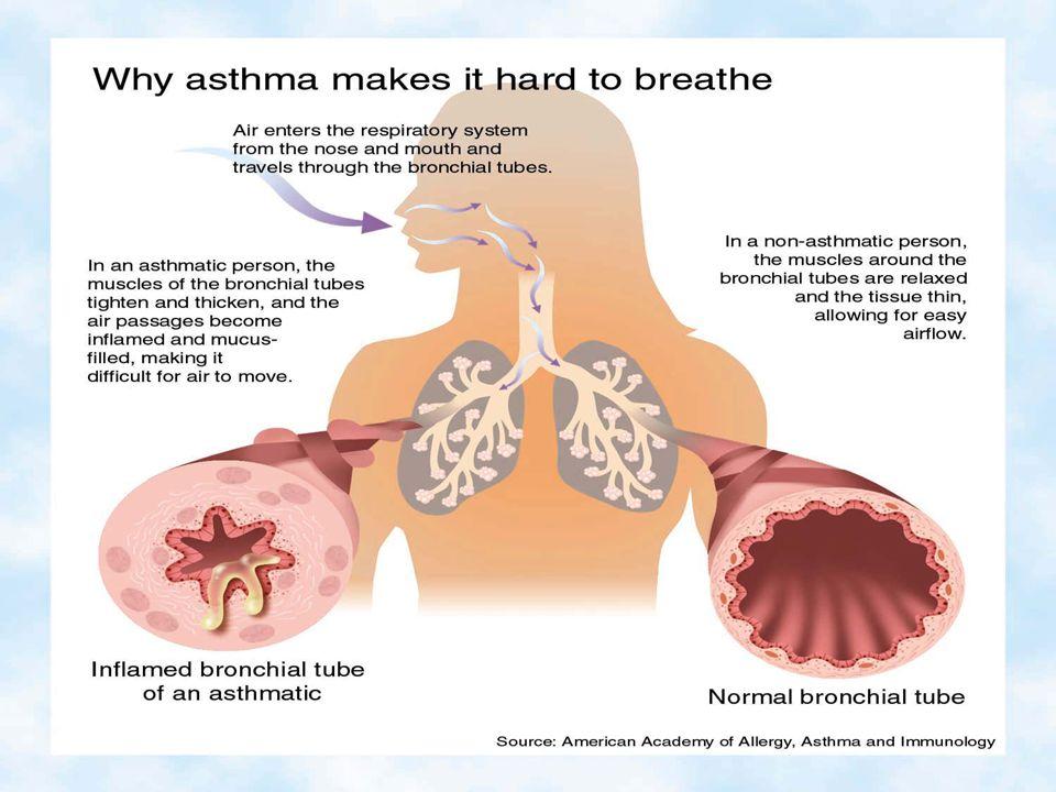 1 13. 3- nello spazio interno ai BRONCHI si accumula catarro abbondante prodotto dalle ghiandole bronchiali che ostruisce ulteriormente il passaggio d