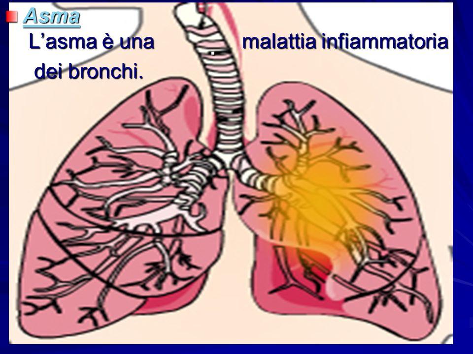 1 3. Asma Asma Lasma è una malattia infiammatoria Asma dei bronchi. dei bronchi.