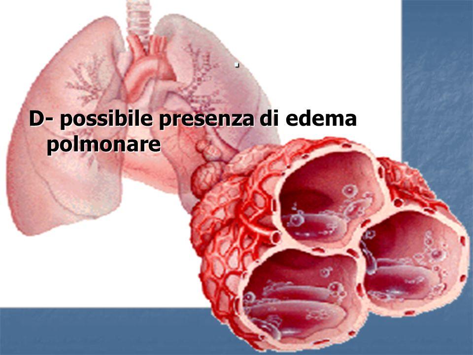 . D- possibile presenza di edema polmonare