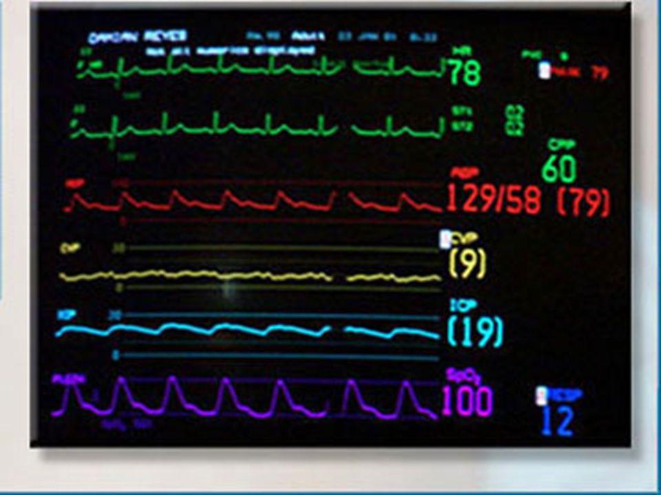 . ECG normale ECG normale