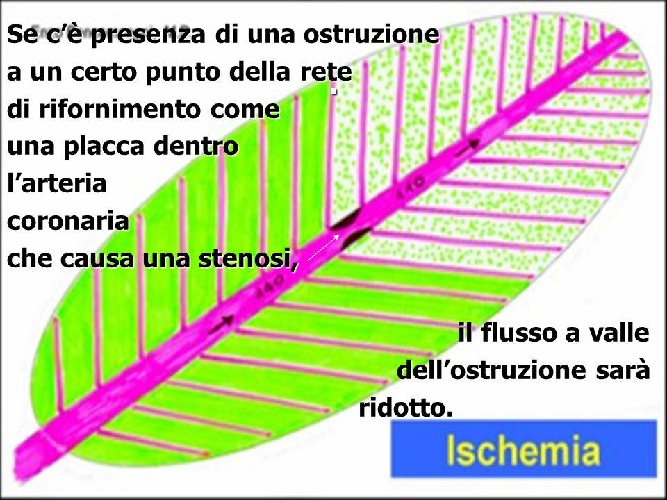 . Se cè presenza di una ostruzione a un certo punto della rete di rifornimento come una placca dentro larteriacoronaria che causa una stenosi, il flus
