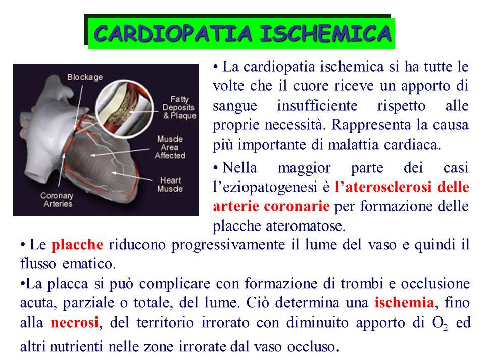 CARDIOPATIA ISCHEMICA La cardiopatia ischemica si ha tutte le volte che il cuore riceve un apporto di sangue insufficiente rispetto alle proprie neces