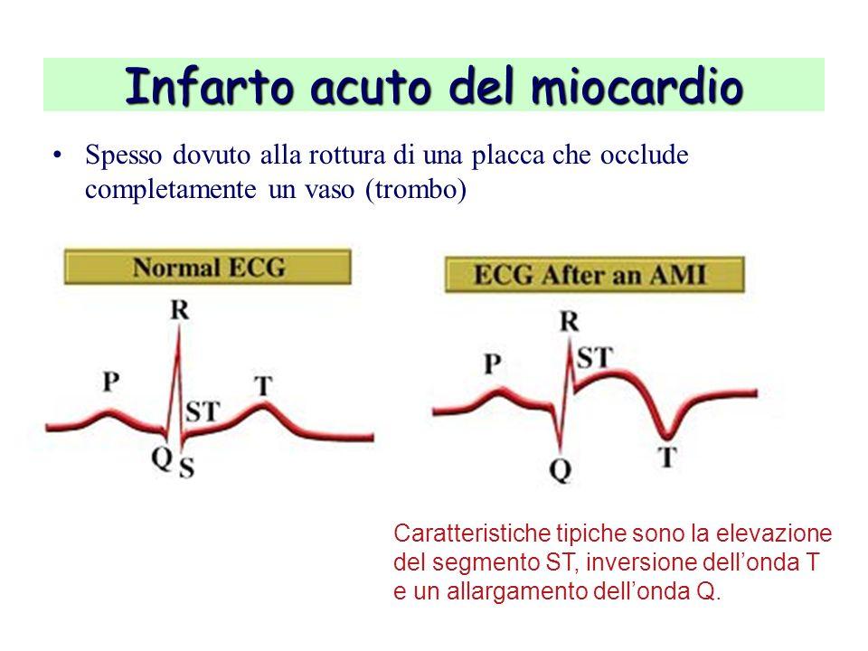 Infarto acuto del miocardio Spesso dovuto alla rottura di una placca che occlude completamente un vaso (trombo) Caratteristiche tipiche sono la elevaz