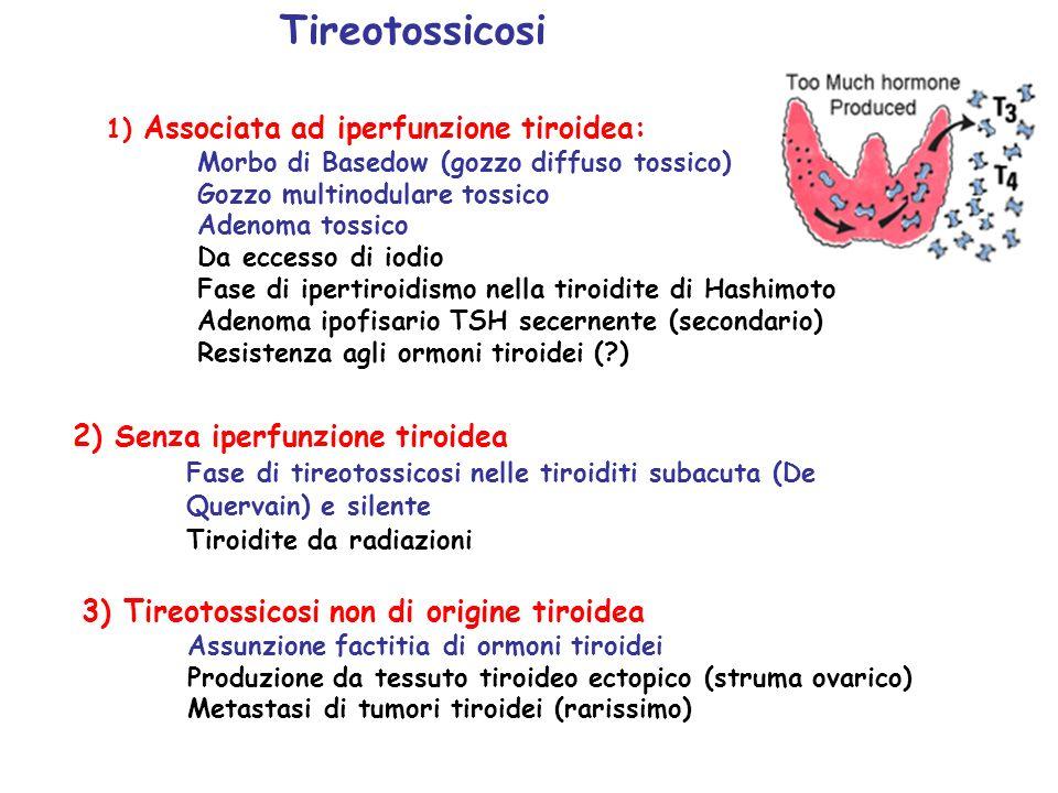 2) Senza iperfunzione tiroidea Fase di tireotossicosi nelle tiroiditi subacuta (De Quervain) e silente Tiroidite da radiazioni Tireotossicosi 1) Assoc