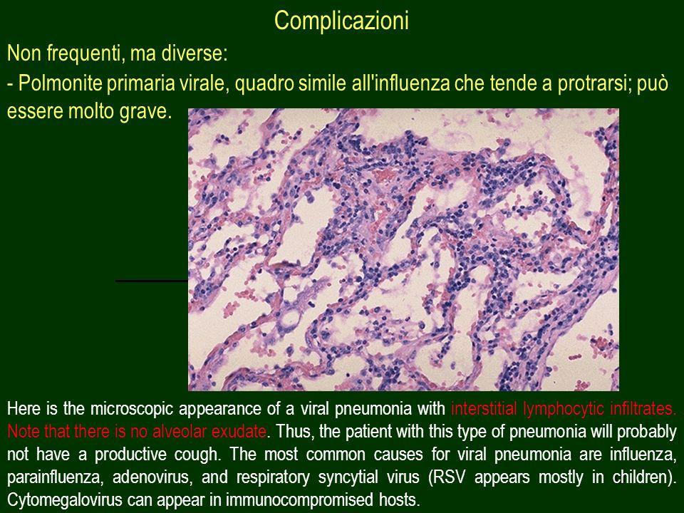 43 Complicazioni Non frequenti, ma diverse: - Polmonite primaria virale, quadro simile all'influenza che tende a protrarsi; può essere molto grave. He