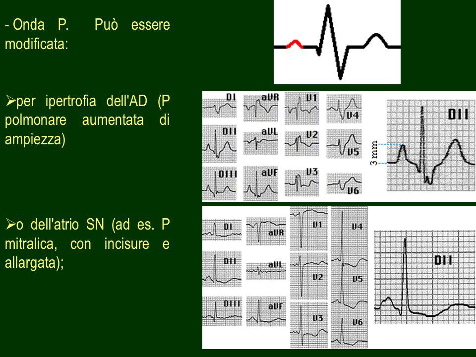 11 - Onda P. Può essere modificata: per ipertrofia dell'AD (P polmonare aumentata di ampiezza) o dell'atrio SN (ad es. P mitralica, con incisure e all
