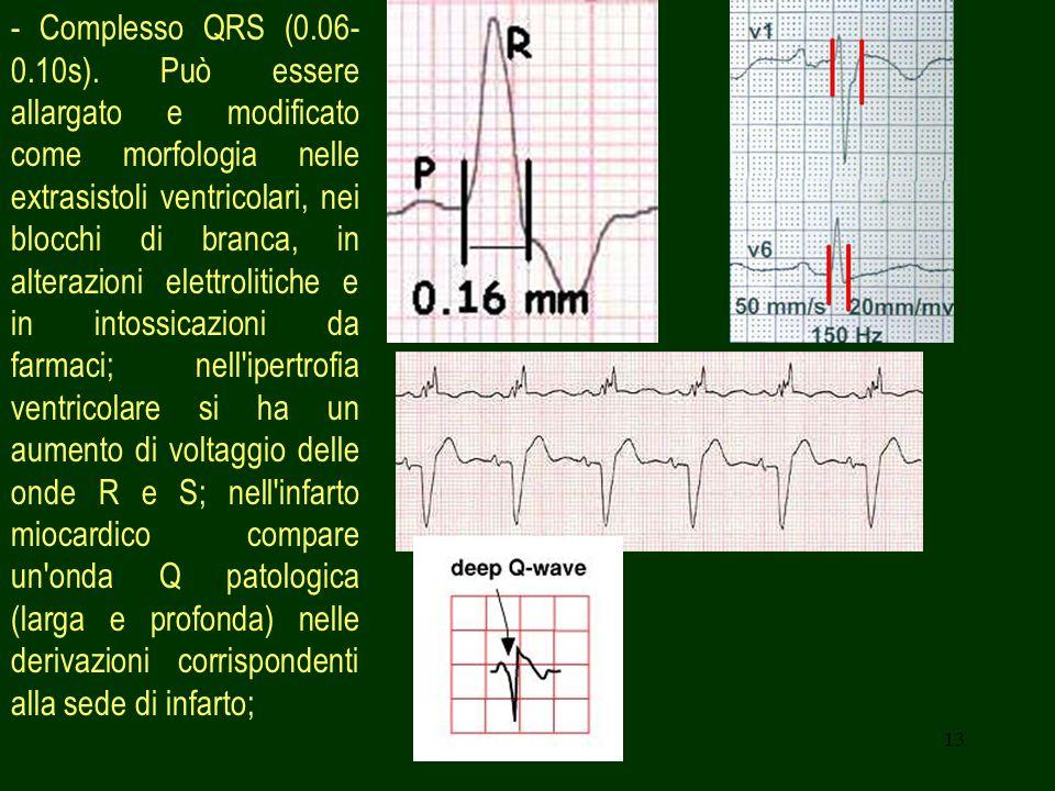 13 - Complesso QRS (0.06- 0.10s). Può essere allargato e modificato come morfologia nelle extrasistoli ventricolari, nei blocchi di branca, in alteraz