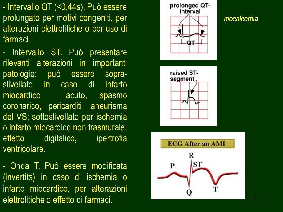 14 - Intervallo QT (<0.44s). Può essere prolungato per motivi congeniti, per alterazioni elettrolitiche o per uso di farmaci. - Intervallo ST. Può pre