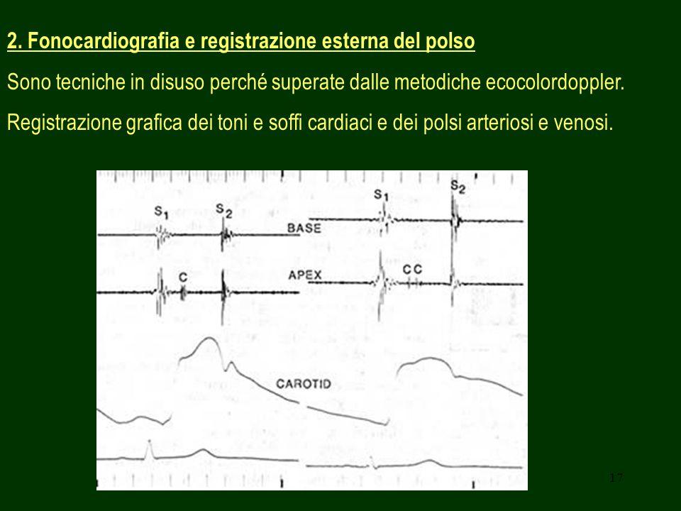 17 2. Fonocardiografia e registrazione esterna del polso Sono tecniche in disuso perché superate dalle metodiche ecocolordoppler. Registrazione grafic