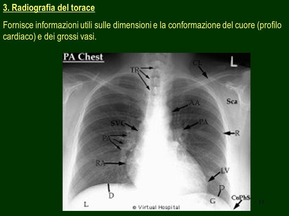 18 3. Radiografia del torace Fornisce informazioni utili sulle dimensioni e la conformazione del cuore (profilo cardiaco) e dei grossi vasi.
