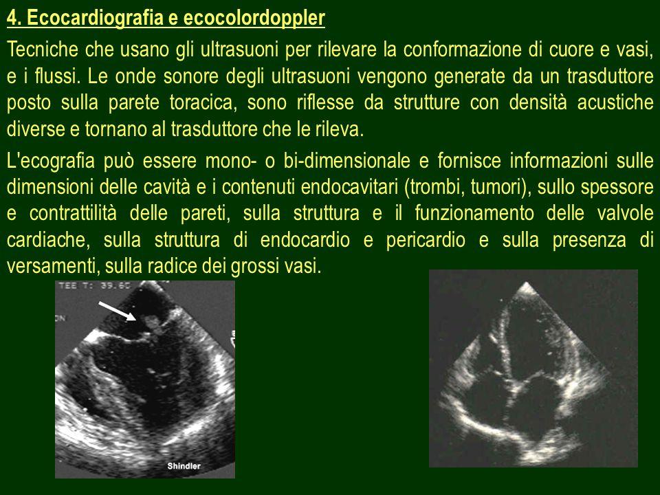 19 4. Ecocardiografia e ecocolordoppler Tecniche che usano gli ultrasuoni per rilevare la conformazione di cuore e vasi, e i flussi. Le onde sonore de