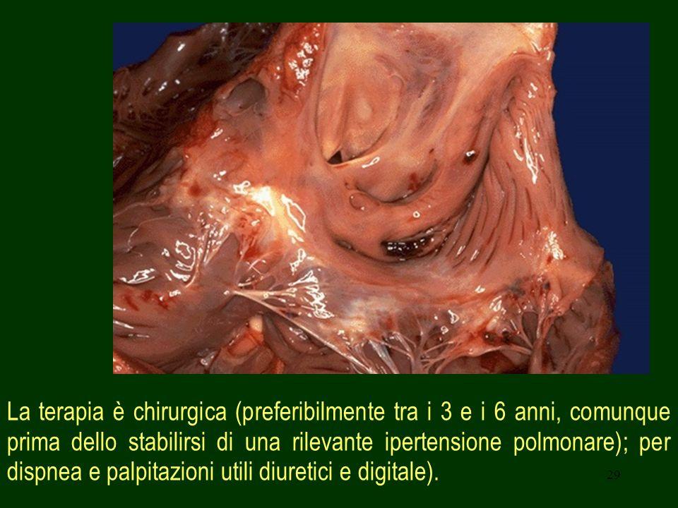 29 La terapia è chirurgica (preferibilmente tra i 3 e i 6 anni, comunque prima dello stabilirsi di una rilevante ipertensione polmonare); per dispnea