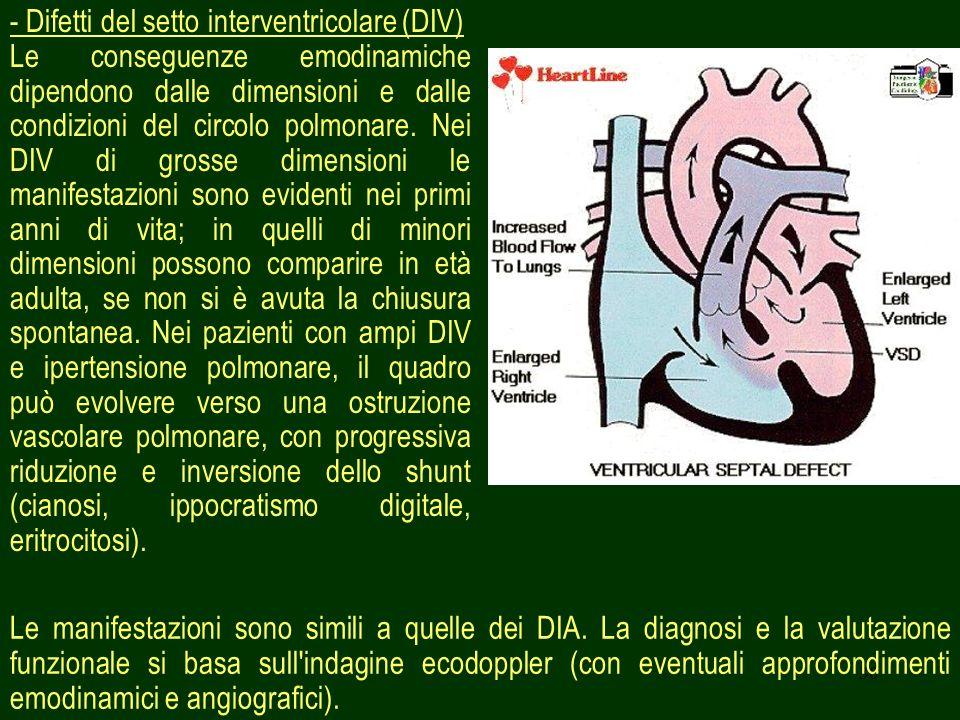 30 - Difetti del setto interventricolare (DIV) Le conseguenze emodinamiche dipendono dalle dimensioni e dalle condizioni del circolo polmonare. Nei DI
