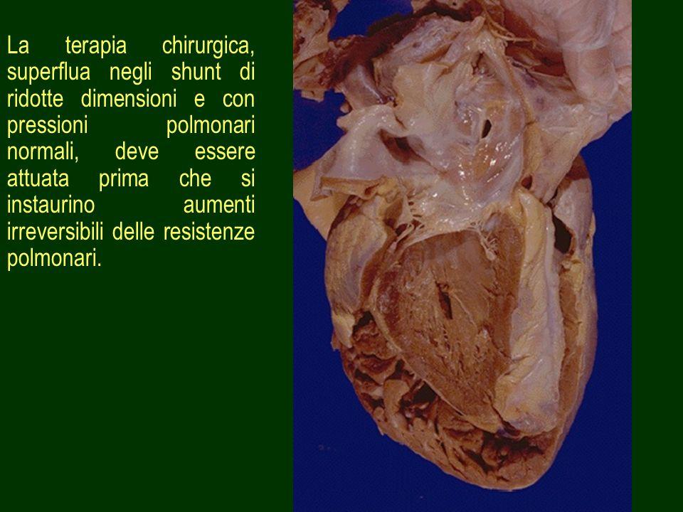 31 La terapia chirurgica, superflua negli shunt di ridotte dimensioni e con pressioni polmonari normali, deve essere attuata prima che si instaurino a