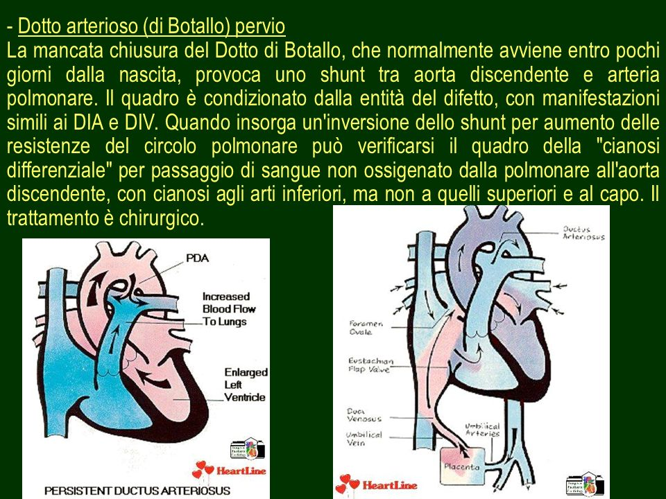32 - Dotto arterioso (di Botallo) pervio La mancata chiusura del Dotto di Botallo, che normalmente avviene entro pochi giorni dalla nascita, provoca u