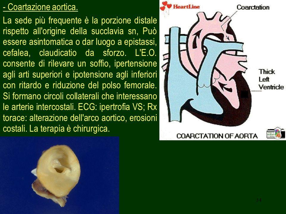 34 - Coartazione aortica. La sede più frequente è la porzione distale rispetto all'origine della succlavia sn, Può essere asintomatica o dar luogo a e