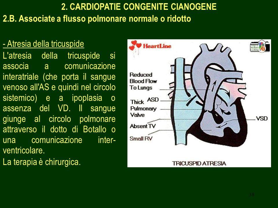 38 2. CARDIOPATIE CONGENITE CIANOGENE 2.B. Associate a flusso polmonare normale o ridotto - Atresia della tricuspide L'atresia della tricuspide si ass