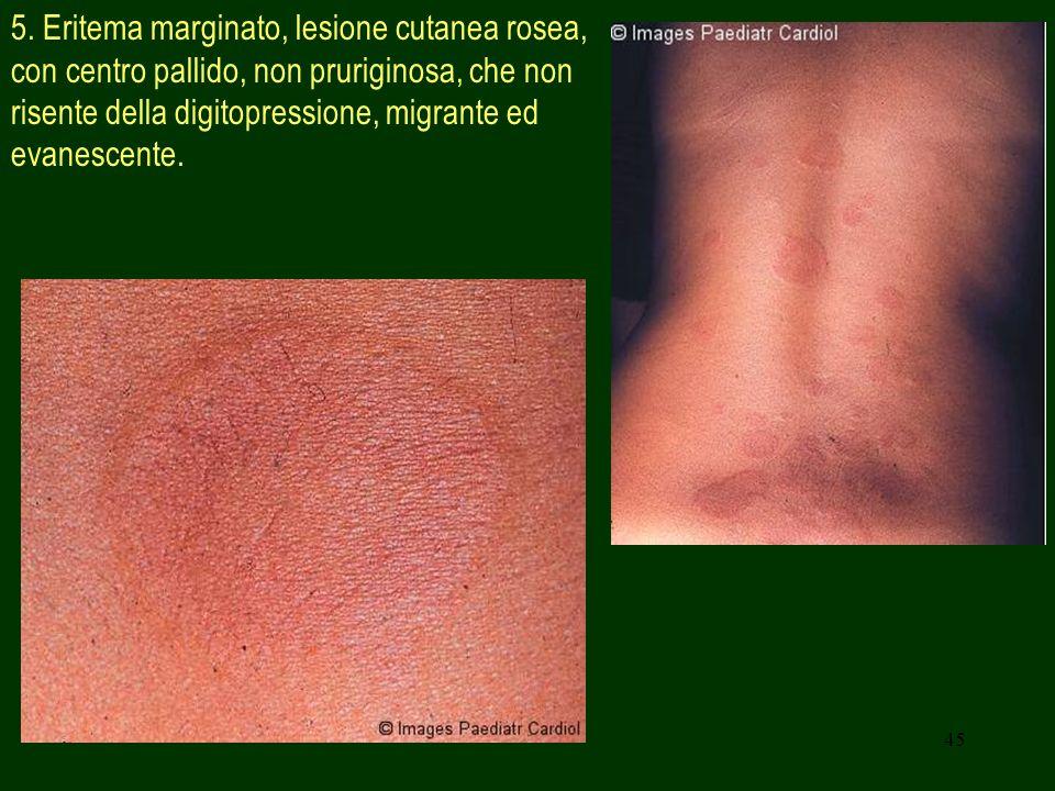 45 5. Eritema marginato, lesione cutanea rosea, con centro pallido, non pruriginosa, che non risente della digitopressione, migrante ed evanescente.