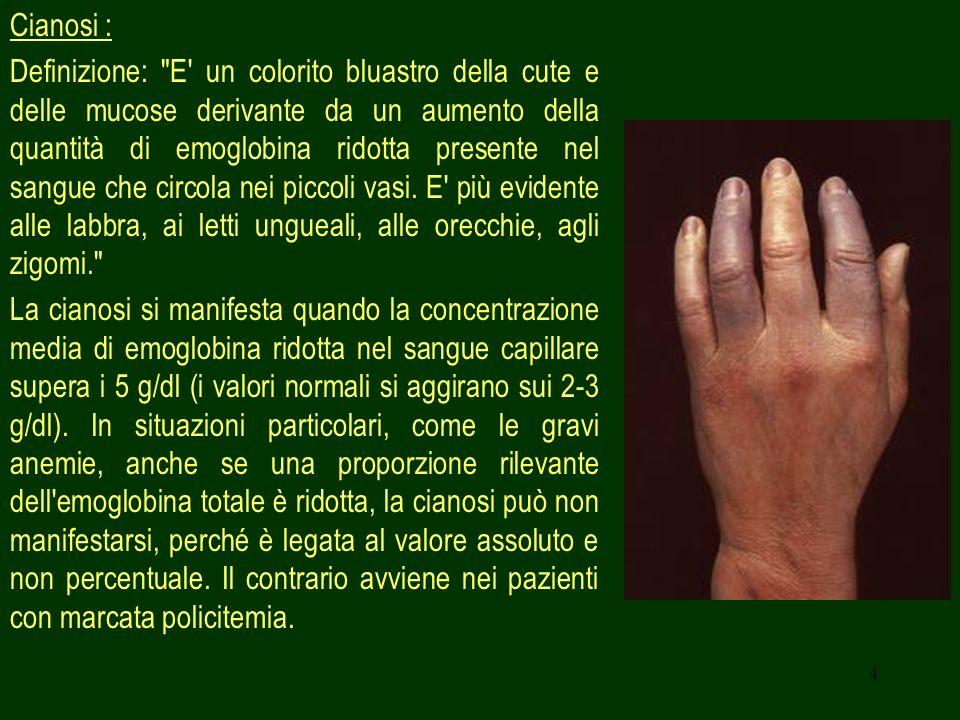 15 Cause polmonari: - Pleurite o polmonite; - Tracheobronchite; - Pneumotorace; - Neoplasie; - Mediastinite o enfisema mediastinico.