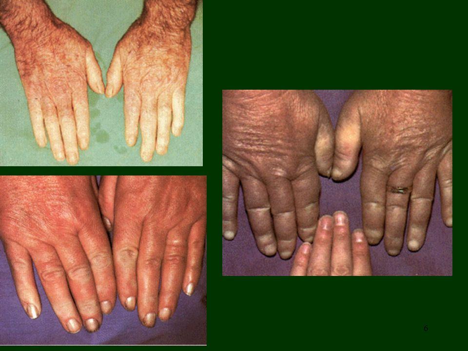 7 Cianosi centrale, dovuta ad una minore saturazione di 0 2 nel sangue capillare come avviene nelle malattie dell apparato respiratorio in cui il sangue non viene riossigenato a livello polmonare (detta anche cianosi calda perché la circolazione nei tessuti è normale).
