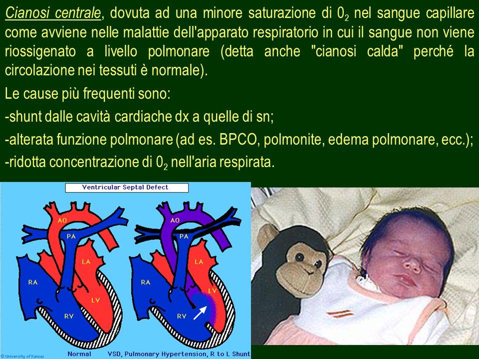 18 Da altre cause: - Malattie mammarie; - Tumori della parete toracica; - Herpes zoster.