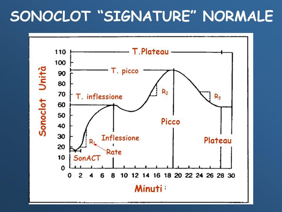 SONOCLOT SIGNATURE NORMALE T.Plateau T. picco T. inflessione Inflection R1R1 R2R2 Picco Plateau R3R3 Baseline Sonoclot Unità Minuti Inflessione Platea