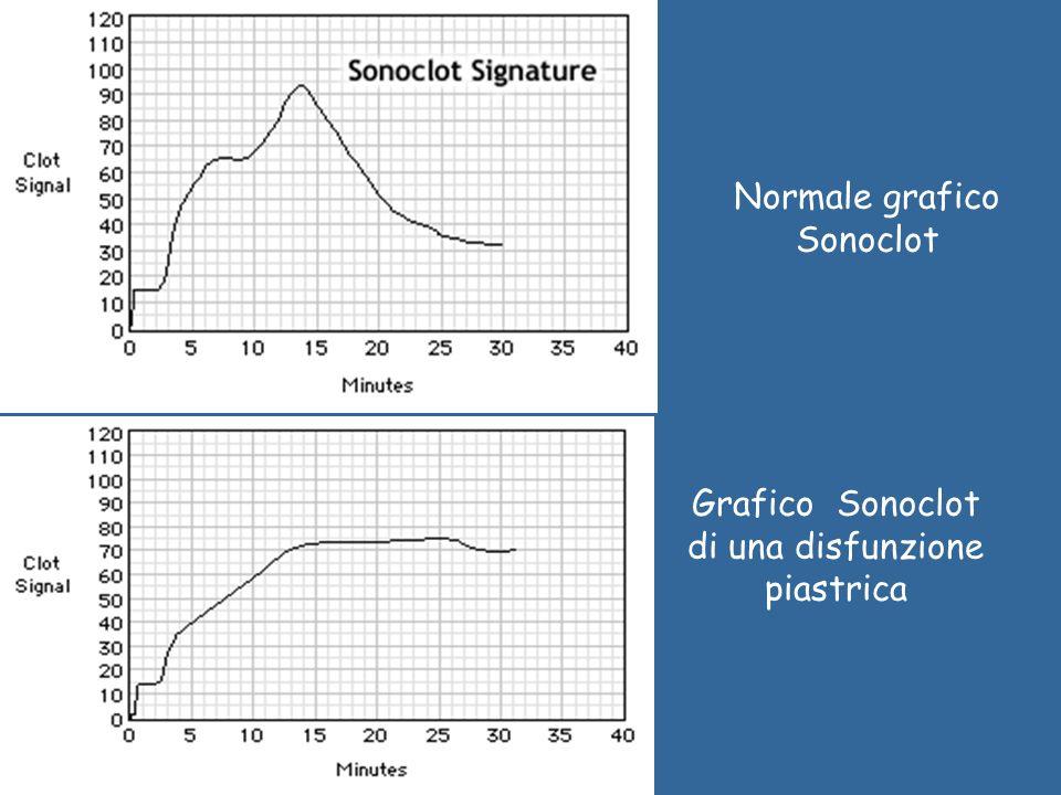 Grafico Sonoclot di una disfunzione piastrica Normale grafico Sonoclot