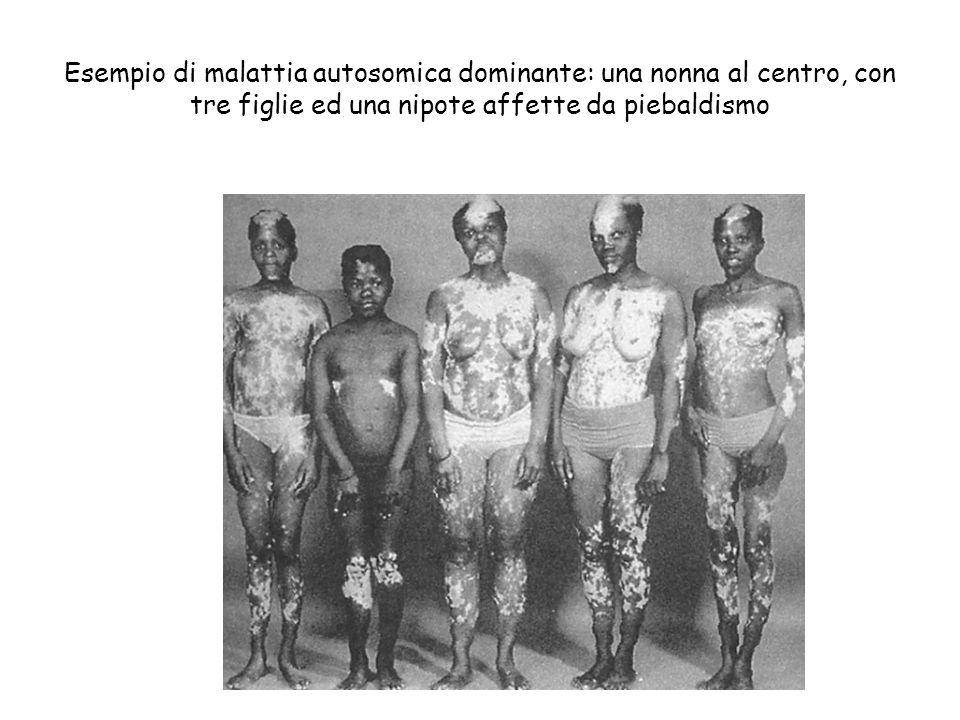 Esempio di malattia autosomica dominante: una nonna al centro, con tre figlie ed una nipote affette da piebaldismo