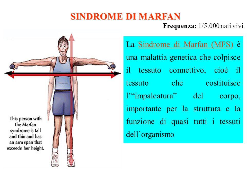 SINDROME DI MARFAN Frequenza: 1/5.000 nati vivi La Sindrome di Marfan (MFS) è una malattia genetica che colpisce il tessuto connettivo, cioè il tessut