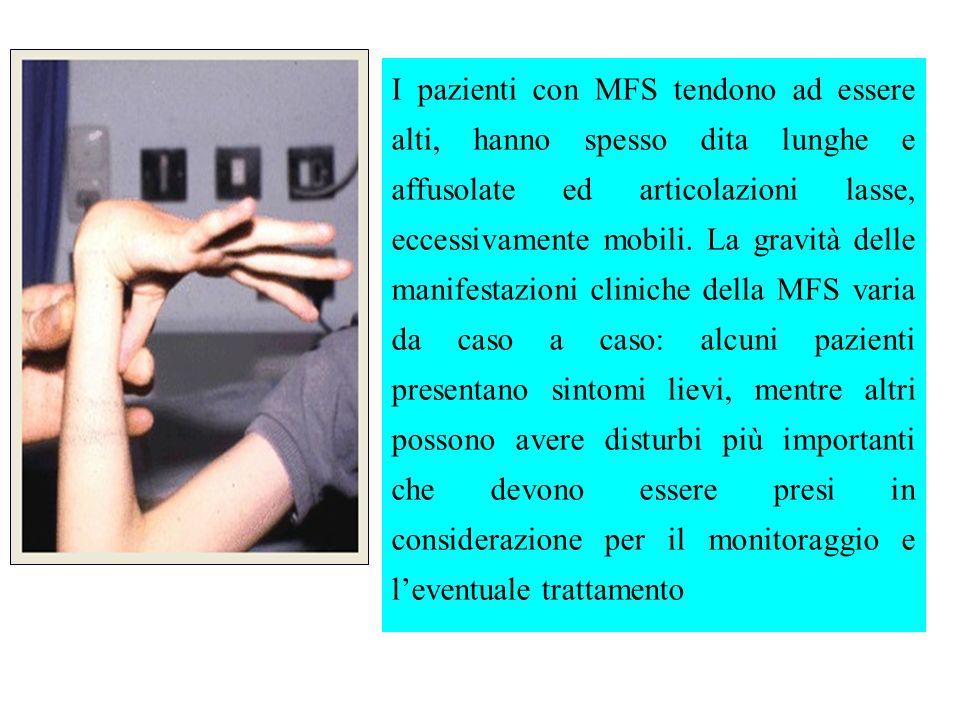 I pazienti con MFS tendono ad essere alti, hanno spesso dita lunghe e affusolate ed articolazioni lasse, eccessivamente mobili. La gravità delle manif