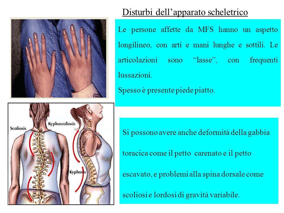 Le persone affette da MFS hanno un aspetto longilineo, con arti e mani lunghe e sottili. Le articolazioni sono lasse, con frequenti lussazioni. Spesso