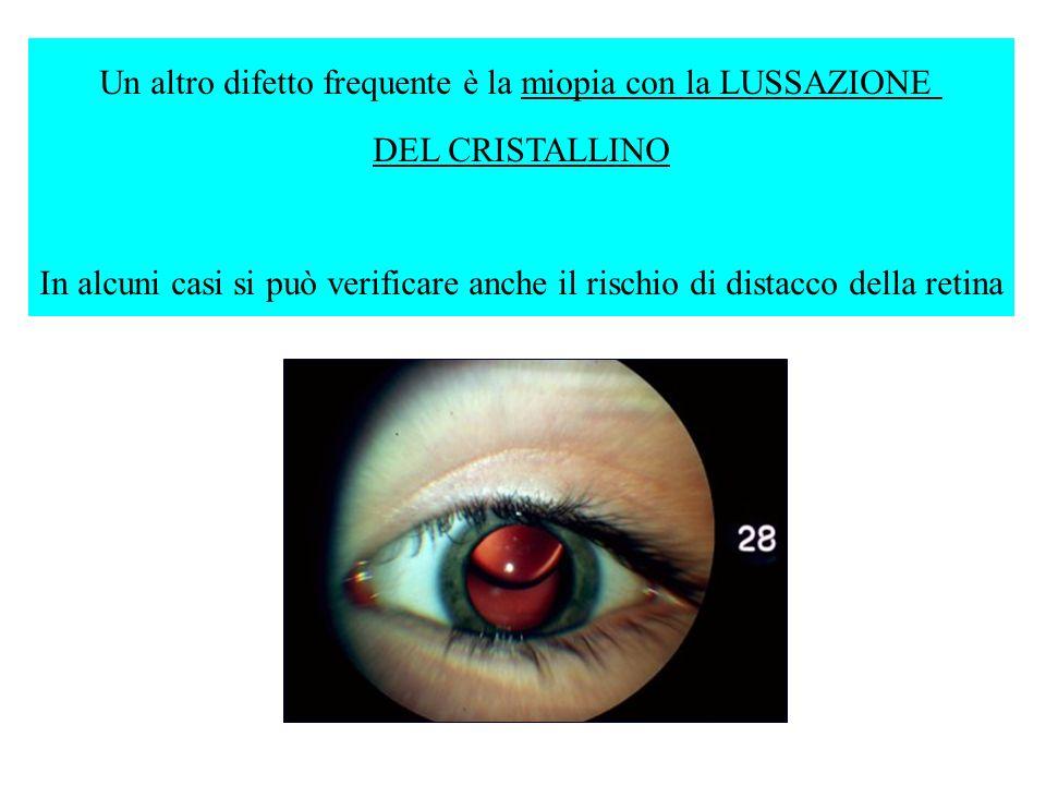 Un altro difetto frequente è la miopia con la LUSSAZIONE DEL CRISTALLINO In alcuni casi si può verificare anche il rischio di distacco della retina