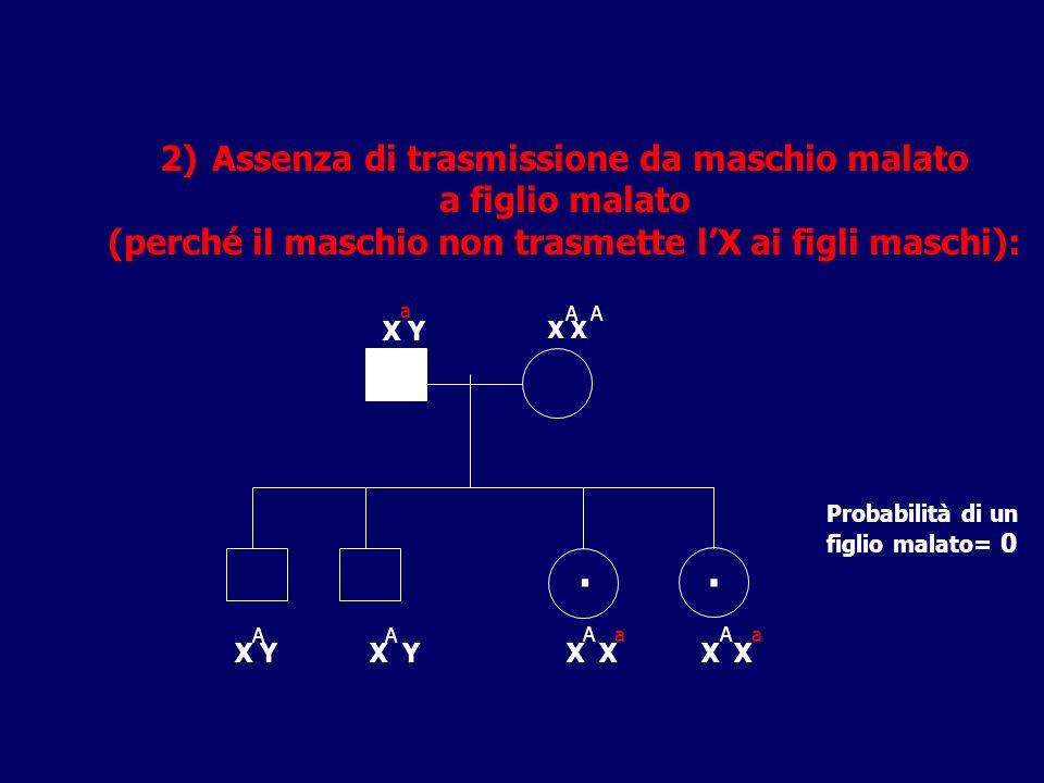 2)Assenza di trasmissione da maschio malato a figlio malato (perché il maschio non trasmette lX ai figli maschi): X Y X X Y Probabilità di un figlio m