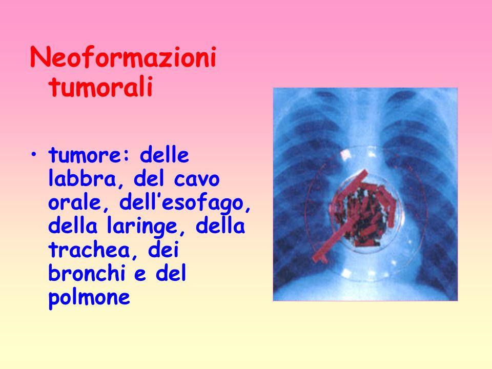 Neoformazioni tumorali tumore: delle labbra, del cavo orale, dellesofago, della laringe, della trachea, dei bronchi e del polmone