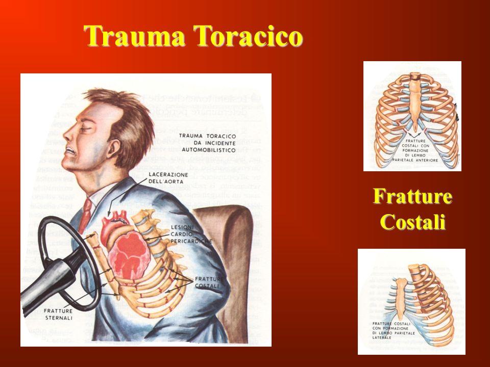 107 Trauma Toracico Fratture Costali