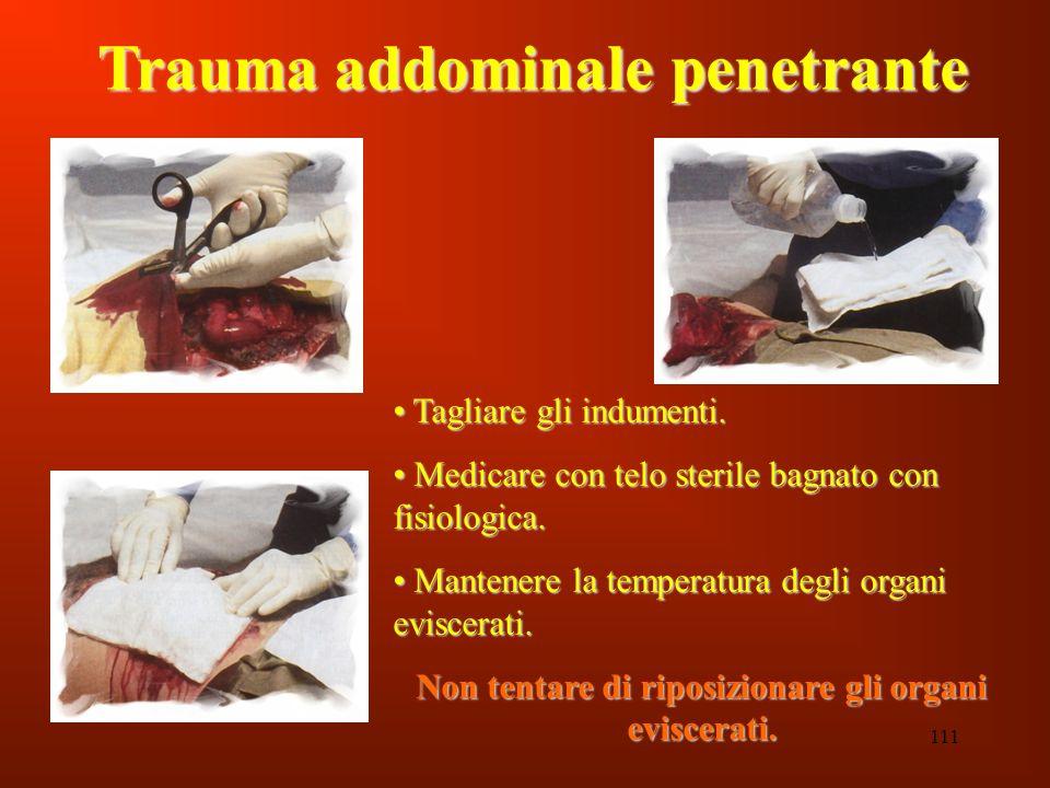 111 Trauma addominale penetrante Tagliare gli indumenti. Tagliare gli indumenti. Medicare con telo sterile bagnato con fisiologica. Medicare con telo