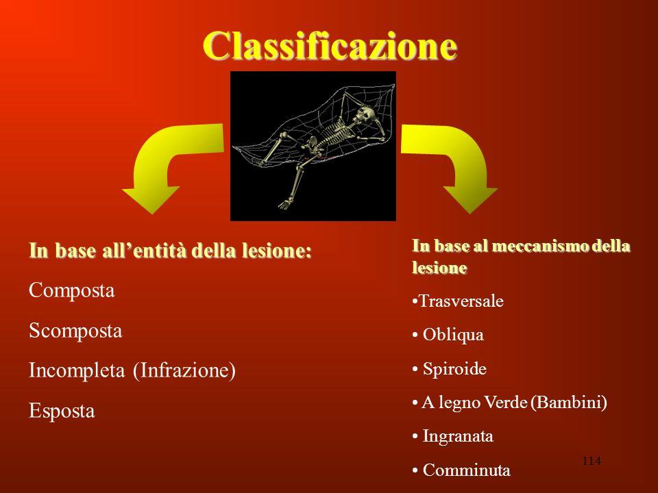 114 Classificazione In base al meccanismo della lesione Trasversale Obliqua Spiroide A legno Verde (Bambini) Ingranata Comminuta In base allentità del