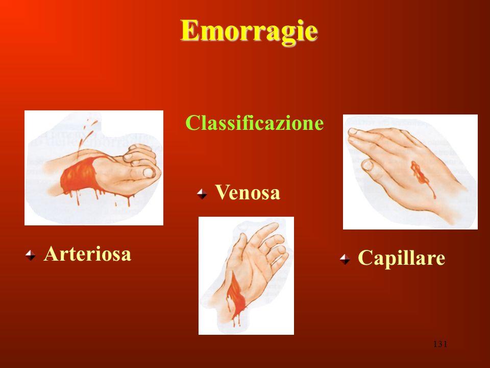 131 Emorragie Classificazione Arteriosa Capillare Venosa