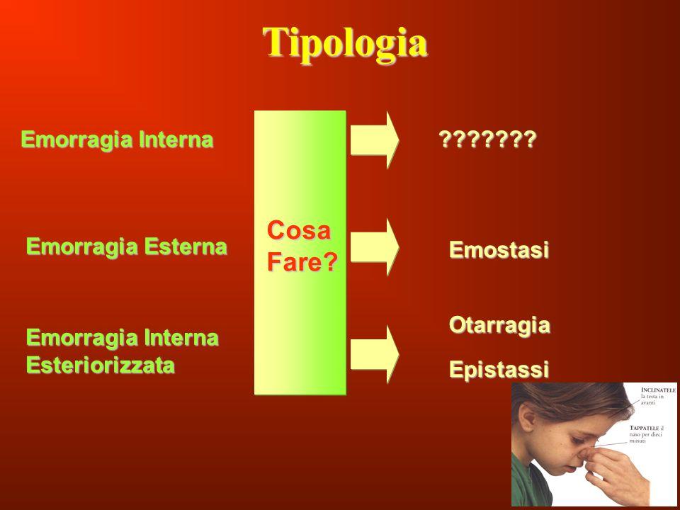 132 Tipologia Emorragia Interna Emorragia Interna Esteriorizzata Emorragia Esterna Cosa Fare? Emostasi Otarragia Epistassi ???????