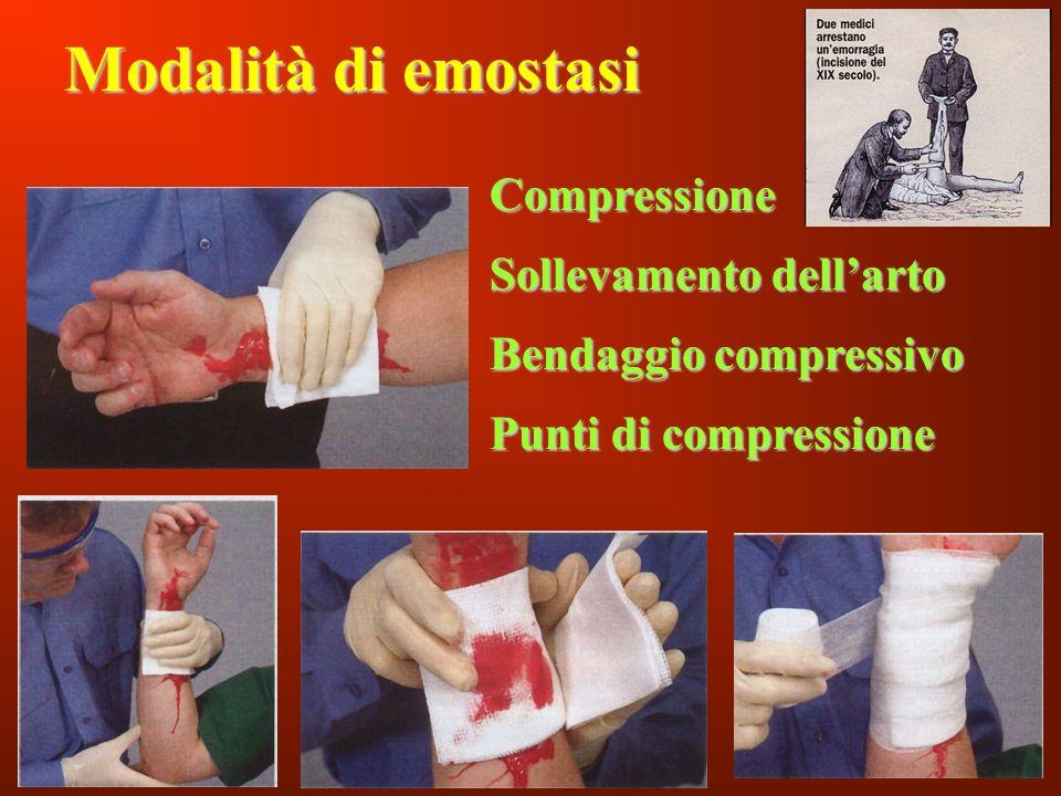 Inf. Sartor Valter133 Modalità di emostasi Compressione Sollevamento dellarto Bendaggio compressivo Punti di compressione