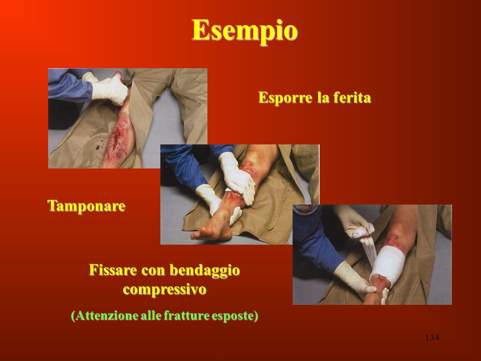 134 Esempio Esporre la ferita Tamponare Fissare con bendaggio compressivo (Attenzione alle fratture esposte)