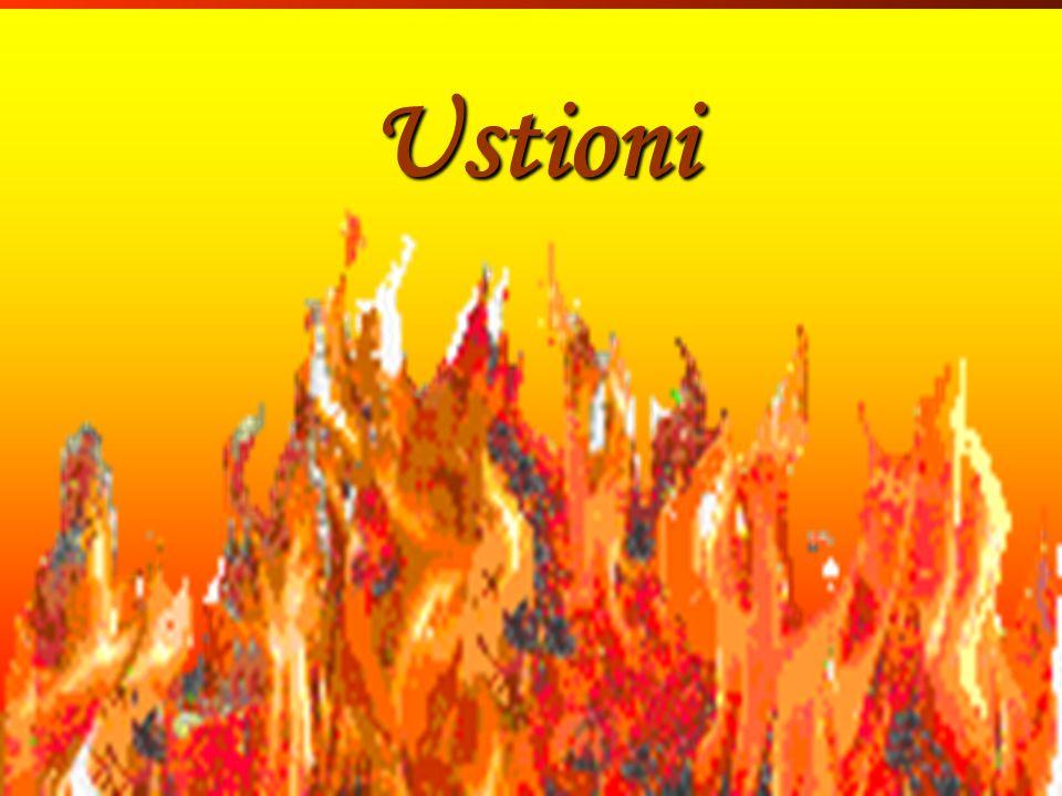 Inf. Sartor Valter138 Ustioni Ustioni