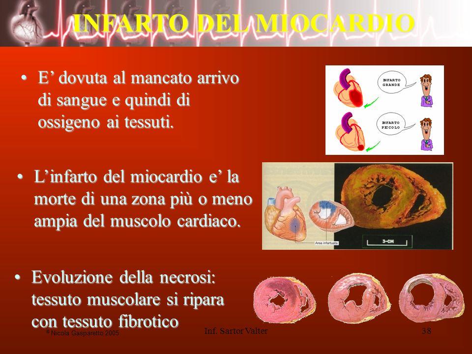 Inf. Sartor Valter38 INFARTO DEL MIOCARDIO Linfarto del miocardio e la morte di una zona più o meno ampia del muscolo cardiaco.Linfarto del miocardio