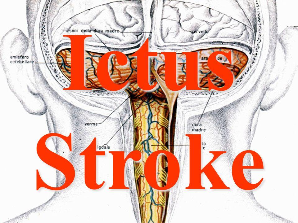 Inf. Sartor Valter79 Ictus Stroke