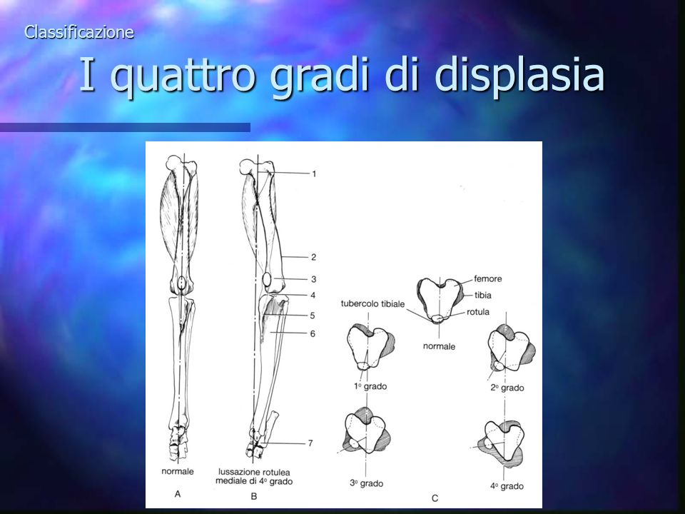 Classificazione I quattro gradi di displasia