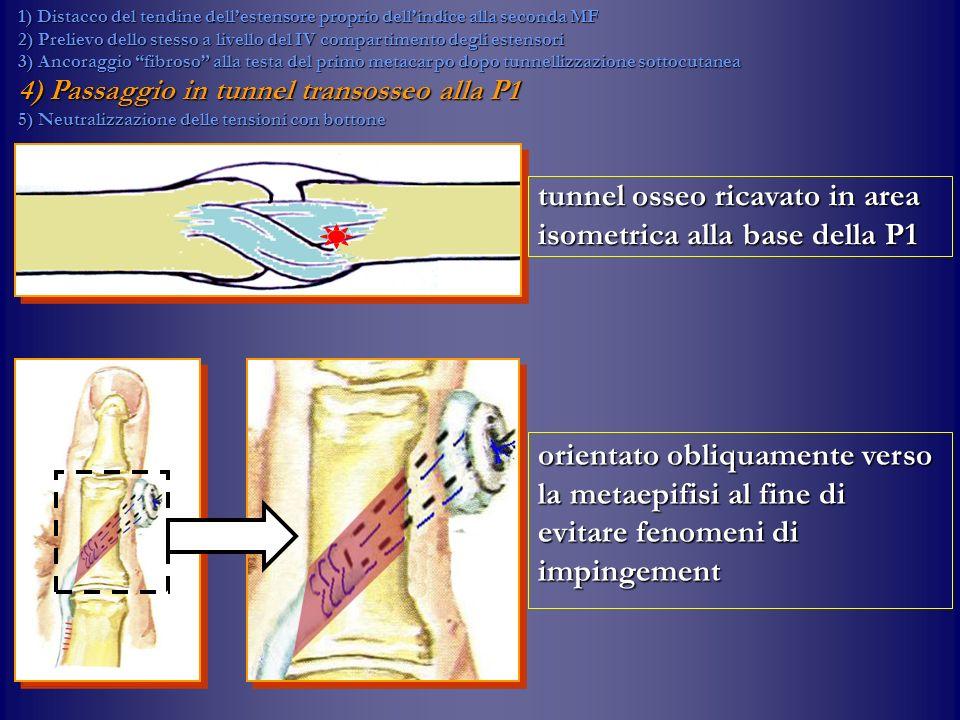 tunnel osseo ricavato in area isometrica alla base della P1 orientato obliquamente verso la metaepifisi al fine di evitare fenomeni di impingement 1)