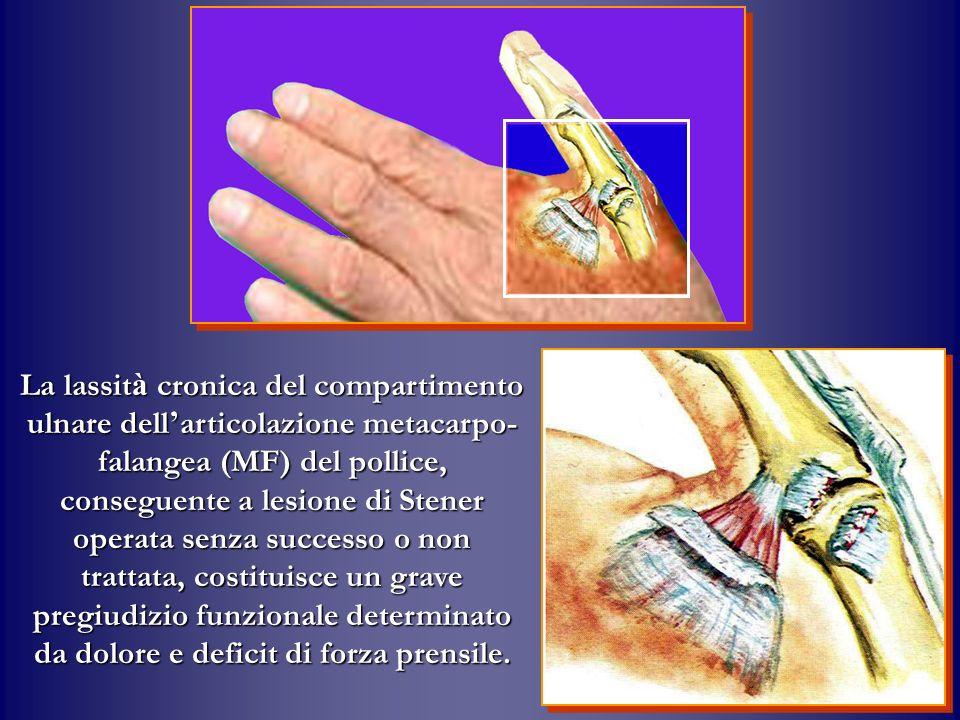 La lassit à cronica del compartimento ulnare dell articolazione metacarpo- falangea (MF) del pollice, conseguente a lesione di Stener operata senza su