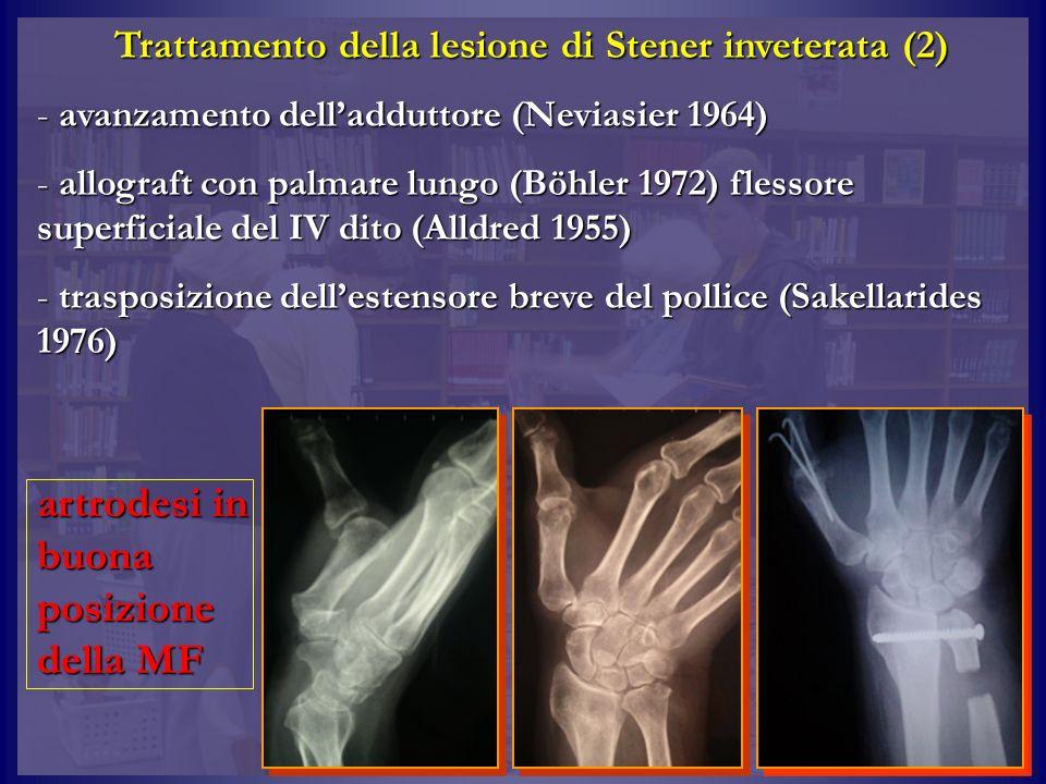 Trattamento della lesione di Stener inveterata (2) - avanzamento delladduttore (Neviasier 1964) - allograft con palmare lungo (Böhler 1972) flessore s