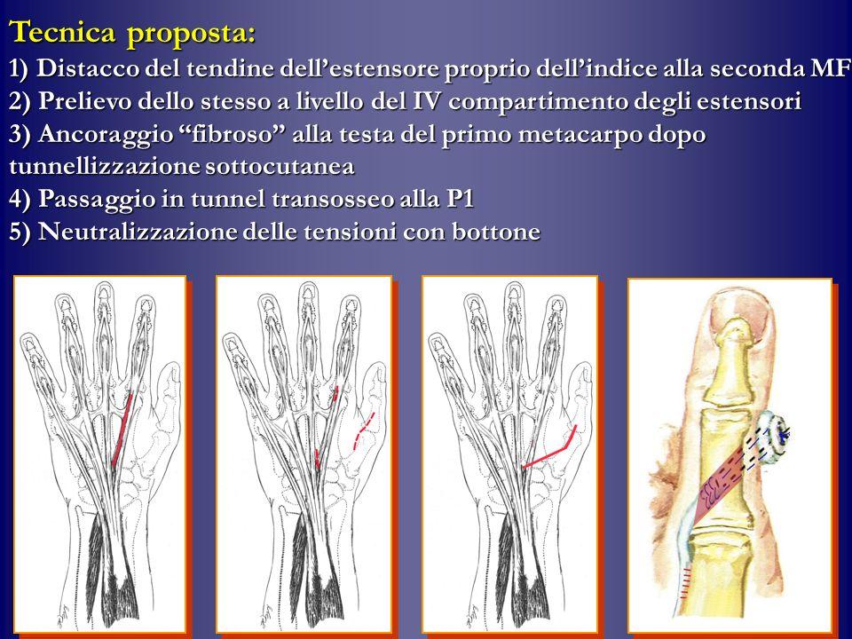 Tecnica proposta: 1) Distacco del tendine dellestensore proprio dellindice alla seconda MF 2) Prelievo dello stesso a livello del IV compartimento deg
