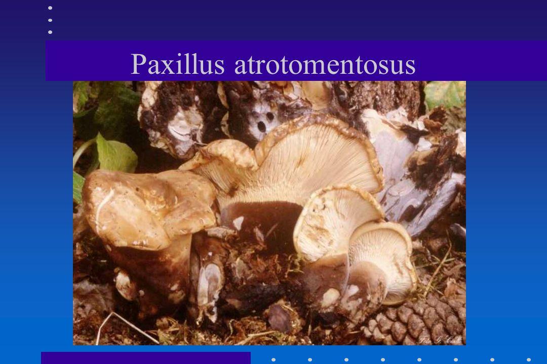 SINDROME PAXILLICA PAXILLUS INVOLUTUSPAXILLUS INVOLUTUS ONSET : 1/3 ORE-3 GIORNIONSET : 1/3 ORE-3 GIORNI REAZIONE IMMUNO-EMOLITICAREAZIONE IMMUNO-EMOL